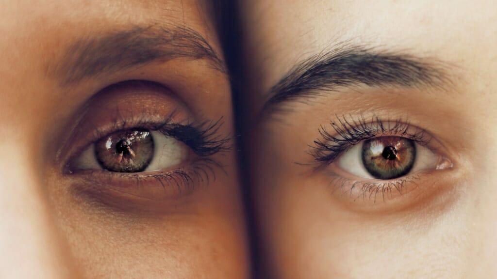 Olheiras: o que são, causas e como tratar